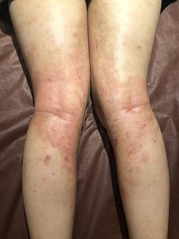 アトピー性皮膚炎で肌の水分量が減少!グリーンピール_20200721_2