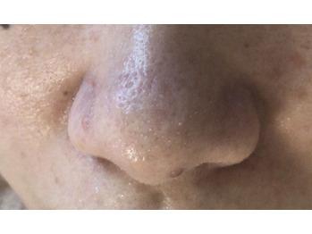 鼻の汚れスッキリお掃除ケア☆人気です。_20190414_1