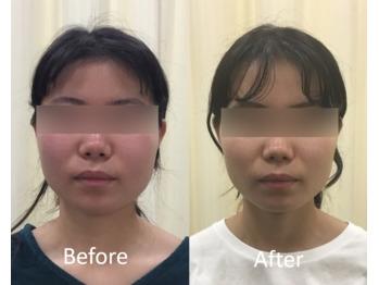 モニターさま、小顔矯正のお写真 Before ⇔ After_20200903_1