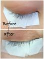 育毛美容液1か月後の実際の効果