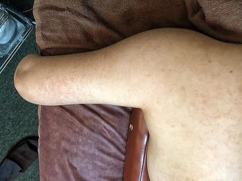 二の腕の毛孔性苔癬/毛孔性角化症にグリーンピール_20190905_3