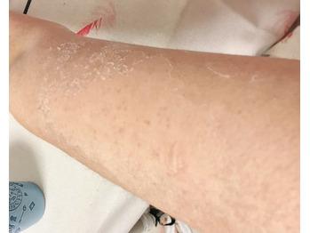 二の腕の毛孔性苔癬/毛孔性角化症にグリーンピール_20190905_4