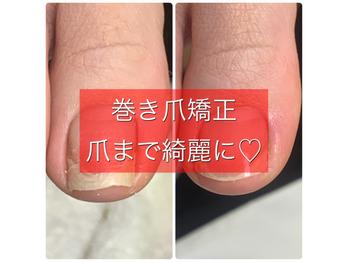 巻き爪矯正爪フラ法_20210121_1