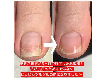 巻き爪矯正爪フラ法_20210121_2