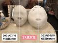 石膏パック比較~27歳女性~11回の変化