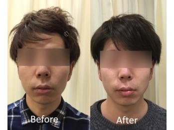 モニターさま、小顔矯正のお写真 Before ⇔ After_20201216_1