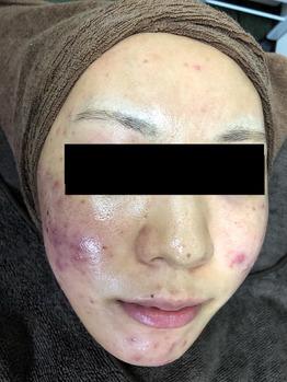 化膿したニキビ/ニキビ痕/毛穴の開きハーブピーリング_20200202_1