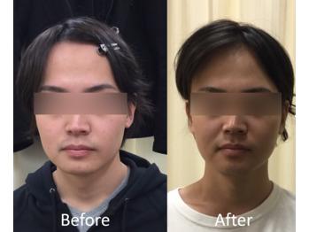 モニターさま、小顔矯正のお写真 Before ⇔ After_20190618_1