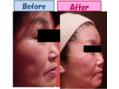 乾燥肌は肌老化に直結。バリア機能強化で老化STOP!