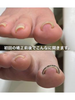 巻き爪矯正爪フラ法_20210127_2