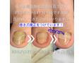 爪甲鉤彎症