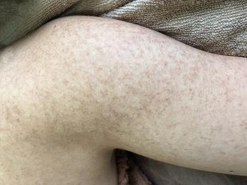 毛孔性苔癬(もうこうせいたいせん)改善グリーンピール_20190102_2