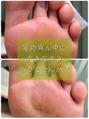 足の真ん中に大きなタコありませんか?