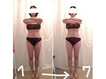 全身+顔&頭皮の筋膜リリース7回施術ビフォーアフター_20210811_1