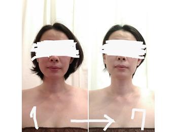全身+顔&頭皮の筋膜リリース7回施術ビフォーアフター_20210811_4