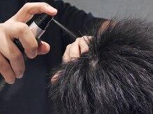 (4)最も浸透しやすい頭皮は7割程のドライ状態!!