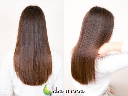 ダアッカ(da acca)の写真