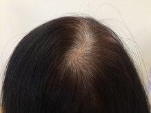 【50代~】髪のお悩みとヘナによる改善効果