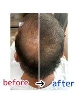 頭皮改善!育毛促進ケア