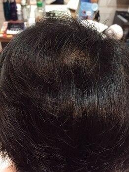 ヘア シュシュ(HAIR chou chou)の写真/松本市で数少ない【ヘアループの出来るサロン】憧れの自分が実現◎誰もが望む一番似合うスタイルになれる♪