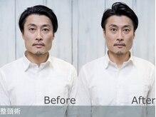 【新感覚ヘッドスパ】メンズ専門店で行う育毛促進×小顔整頭術ヘッドスパで極上のリラックスタイムを・・・
