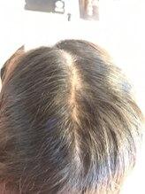 【髪質改善編】『分け目が目立・トップのボリュームが無い...髪や頭皮良さうなケア』をしてみたい場合は?