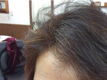 ゾーンヘアの写真/【ヘナカラー/香草カラー】頭皮が敏感なあなたに!しっかり染まる自然派カラーで、髪と心に優しい施術を♪