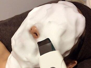 ディオーネ 京都河原町店(Dione)の写真/大人気【美肌顔脱毛+超音波毛穴洗浄】¥9900→¥4400!毛穴を綺麗にした後お顔脱毛でさらにお肌の透明感UP◎