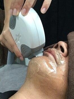 OBSの写真/【濃い男性のムダ毛を短期間で清潔感のあるお顔に♪】冷たいヘッドで冷却しながら行うので痛みも少ない◎
