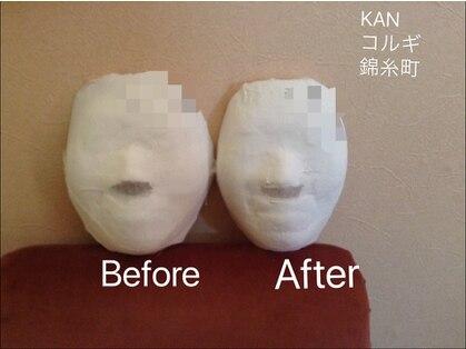 カンコルギセラピー 錦糸町店(KAN)の写真