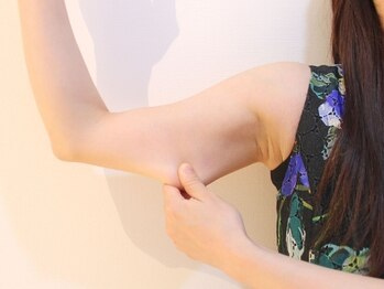 ベル(Belle)/痩せにくい二の腕もハイフで◎