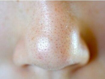 マハロ(mahalo)の写真/気になる小鼻の黒ずみ,小鼻まわりの赤み,毛穴の開き,肌のごわつき…様々なお肌のトラブルにアプローチ☆