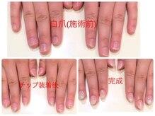 爪のお悩み解決☆深爪・噛み爪専用コースはクーポン詳細ページへ