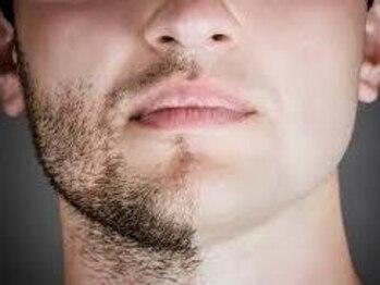 メンズマロウド(Men's malowdo)の写真/とにかく効果がスゴイ!!【malowdoの定額ヒゲ脱毛】で髭剃り&青ヒゲから解放!別人のようなツルスベ肌に♪
