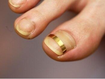 ハッピーフット 銀座店(HAPPY FOOT)の写真/専門店ならではの巻爪矯正★専用プレートで爪の巻き込みをリフトアップ!日頃悩まされていた痛みもスッキリ!