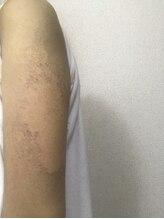 リベル 名古屋(Lebelle:)/腕のブツブツ改善のためのハーブ