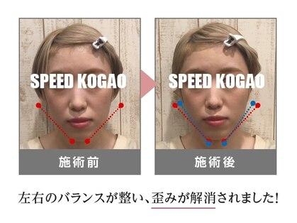 スピード小顔 銀座店(Speed小顔)の写真