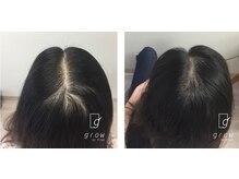 頭皮ケア専門サロン グロウ(grow by k-two)の雰囲気(頭皮ケア、インナーケア、自律神経の安定など改善を目指します。)