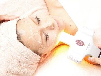 ディオーネ 心斎橋店プレミアム(Dione Premium)の写真/敏感肌もOK<眉間,鼻,もみあげ>迄含まれ丁寧に2周するお顔脱毛が人気♪コラーゲン生成&美白ケアでハリ潤いUP
