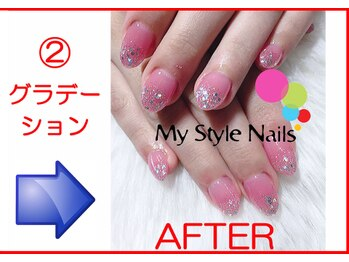 マイ スタイル ネイルズ(My Style Nails)/Before & After