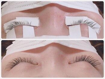 アイビューティー リコ ギンザ(eye beauty LICO ginza)/リペア