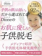 ディオーネ 国分寺駅前店(Dione)