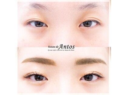 ボーテ ド アントス beaute de Antosの写真