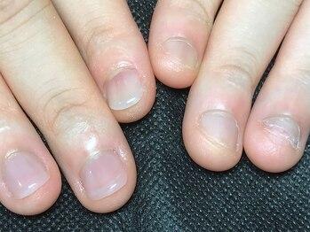 Mネイルアンドカフェ シェレステの写真/噛み爪・深爪・巻き爪のお悩みは、爪の健康を第一に考えるMネイルにお任せ★【噛み爪・深爪ケア3回¥27000】