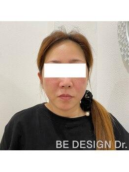 ビーデザインドクター(BE DESIGN Dr.)/ウルセラ3Dハイフafter