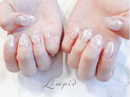 ネイルサロン リムピッド グリッター(Limpid)の写真