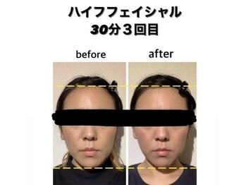 セルフエステ エンリケ 八王子店/お顔ハイフ