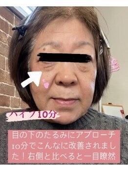 セルフエステ エンリケ 八王子店/