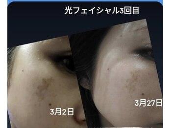 セルフエステ エンリケ 八王子店/大人気の光フェイシャル