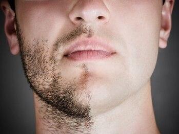 ニコホリ(NIKOHORI)の写真/オシャレなメンズの新常識!!青髭・濃い毛など、あなたの毛のお悩みにアプローチ★お肌を傷めず好印象に☆